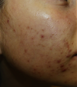 acne en la zona de la mascarilla