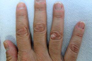 Verruga en el dedo