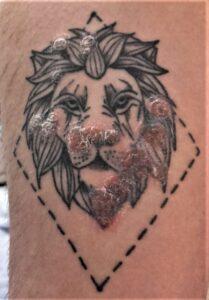 Lesiones de psoriasis sobre un tatuaje por fenómeno de Koebner