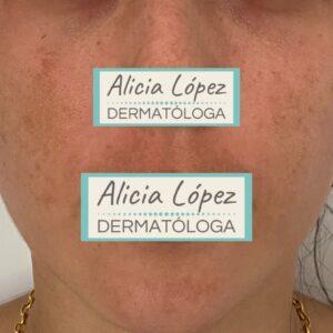 melasma facial