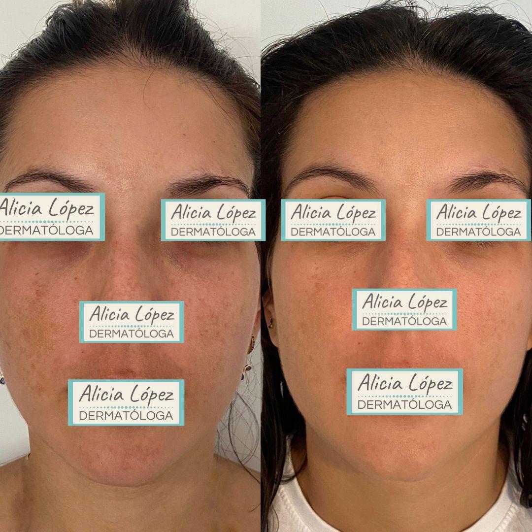 Melasma facial: antes y un mes después de tratamiento tópico combinado únicamente