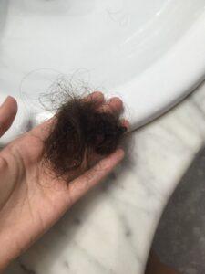 se me cae mucho el pelo